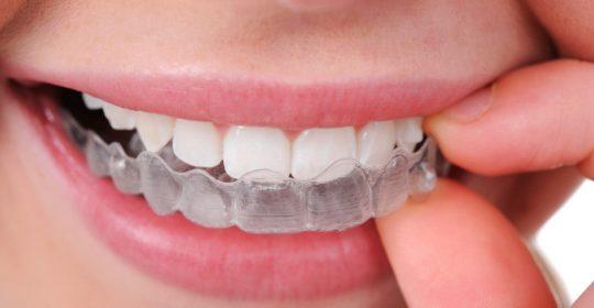 Bruxismo: ¿dolor en los dientes sin razón?