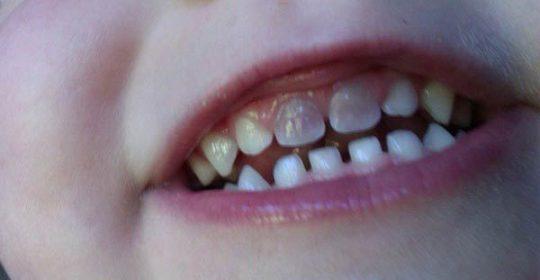 ¿Por qué el diente cambia de color?
