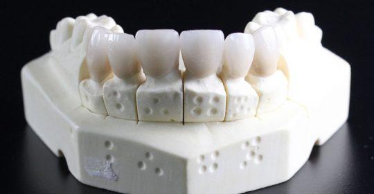 Importancia de la rehabilitación oral para la salud