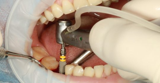 Preiimplantitis: importancia de la higiene bucal con implantes