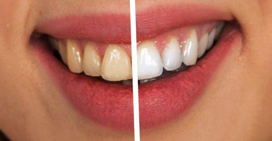 Antiaging dental para rejuvenecer la sonrisa