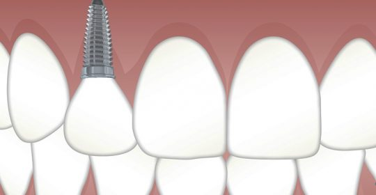 Pérdida dental e implante dental unitario