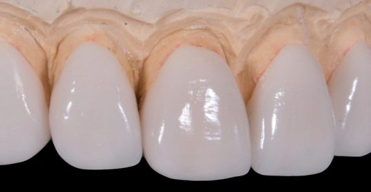 Carillas dentales para la rehabilitación de la sonrisa