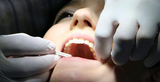 Manchas blancas en los dientes y cómo tratarlas