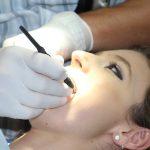 Desgaste dental – por qué ocurre y cómo evitarlo