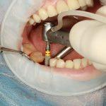 Implantes dentales 4D – rapidez y cero dolor en la restauración de tu sonrisa