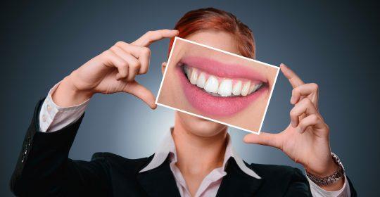 Carillas dentales – para qué sirven y qué tipos hay