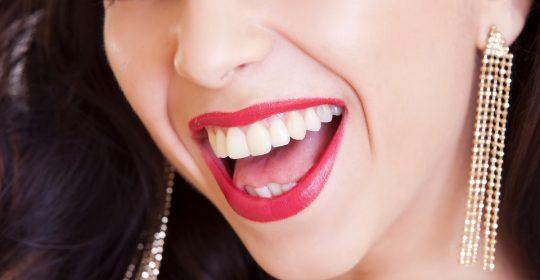 Coronas dentales – usos y tipos que existen